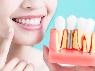 Extracciones dentales modernas